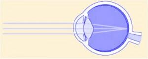 ojo normal