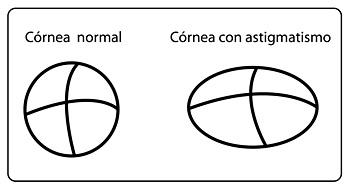 astigmatismo-cornea