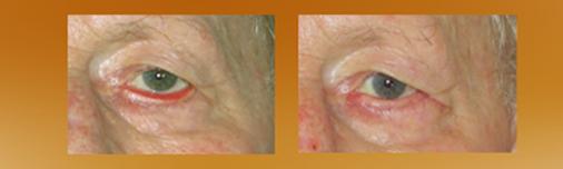 Antes y después de una cirugía de Ectropion