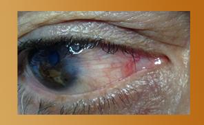 pterigium-clinica-oftalmologica-gijon
