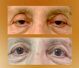 ptosis-palpebral-2
