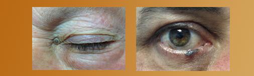 tumores parpados clinica oftalmologica gijon